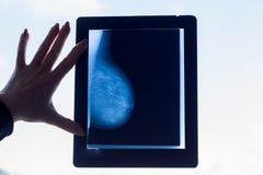 Doktorsblickar på en bröstmammographybild arkivbilder