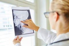 Doktorski analizuje promieniowanie rentgenowskie wizerunek zdjęcia royalty free