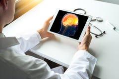 Doktorski dopatrywania promieniowanie rentgenowskie móżdżkowa choroba na cyfrowej pastylce Migreny lub migreny pojęcie obraz royalty free