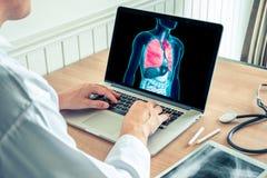 Doktorski działanie z promieniowaniem rentgenowskim płuca na laptopie Nowotwór płuca i papierosowy zapobieganie zdjęcie stock