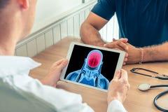 Doktorski mienie cyfrowa pastylka z promieniowaniem rentgenowskim mózg pacjent Móżdżkowego nowotworu lub migreny zapobieganie fotografia stock