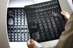 Doktorski mienie obrazek mózg MRI obieg Zdjęcie Royalty Free
