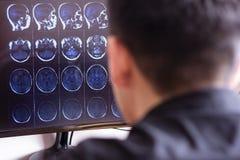 Doktorski radiolog w szpitalnym patrzeje mri promieniowania rentgenowskiego obrazie cyfrowym mózg, głowy i czaszki ct skanerowani zdjęcia stock