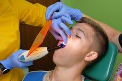 Doktorski ` s i pomocniczy ` s wręczamy dołączać wsporniki na zębach Obrazy Royalty Free