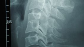 Dolly shot of x-ray image.  stock video