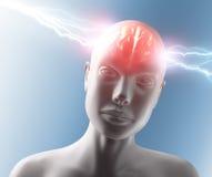 Dolor de cabeza Imagen de archivo libre de regalías