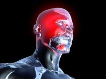 Dolor de cabeza - anatomía libre illustration