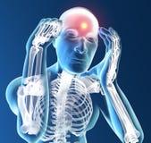 Dolor de cabeza, cabeza, cuerpo humano en radiografía Imágenes de archivo libres de regalías