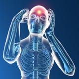 Dolor de cabeza, cabeza, cuerpo humano en radiografía Foto de archivo