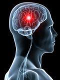Dolor de cabeza/jaqueca ilustración del vector
