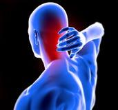 Dolor de cuello de la anatomía del hombre stock de ilustración
