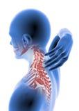 Dolor de cuello de la anatomía del hombre Foto de archivo libre de regalías