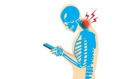 Dolor de cuello de Smartphone Imagen de archivo libre de regalías