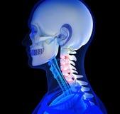 Dolor de cuello humano Fotos de archivo