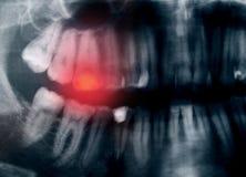 Dolor de dientes imágenes de archivo libres de regalías