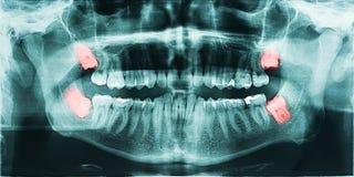 Dolor de dientes de sabiduría Foto de archivo