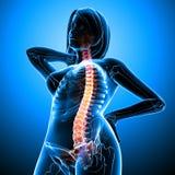 Dolor de espalda del cuerpo femenino Foto de archivo libre de regalías