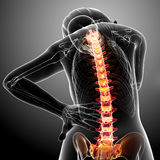 Dolor de espalda femenino Fotografía de archivo