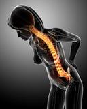 Dolor de espalda femenino en azul Fotos de archivo libres de regalías