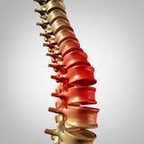 Dolor de la espina dorsal stock de ilustración