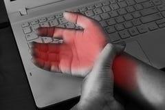 Dolor de la muñeca del trabajo con el ordenador Foto de archivo