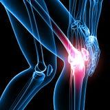 Dolor de la rodilla del esqueleto de la pierna derecha Imagen de archivo libre de regalías