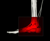 Dolor del pie Imagen de archivo libre de regalías