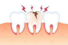 Dolor en el ejemplo quebrado 3d realista del diente ilustración del vector