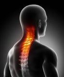 Dolor en espina dorsal cervical Imágenes de archivo libres de regalías