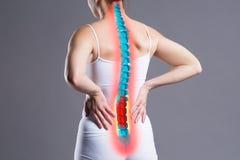 Dolor en la espina dorsal, mujer con dolor de espalda en el fondo gris, dorsal lesión imagen de archivo libre de regalías