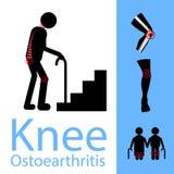 Dolor en su rodilla, concepto plano del viejo hombre de la atención sanitaria del diseño de la rodilla de la osteoartritis Imagenes de archivo