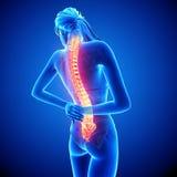 Dolor femenino de la espina dorsal Foto de archivo