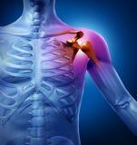 Dolor humano del hombro stock de ilustración