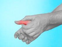 Dolore acuto in dito della mano. Fotografia Stock