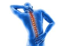 Dolore alla schiena di visione anatomica Fotografie Stock