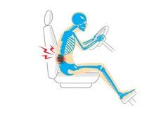 Dolore alla schiena perché posizione sbagliata nell'azionamento illustrazione vettoriale