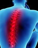 Dolore alla schiena umano Fotografie Stock Libere da Diritti