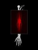 Dolore del braccio Immagini Stock
