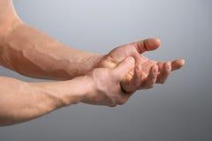 Dolore del braccio. Immagine Stock