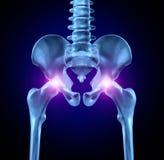 Dolore dell'anca illustrazione di stock
