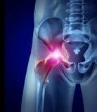 Dolore dell'anca illustrazione vettoriale