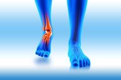Dolore della caviglia - trauma ferito Fotografia Stock