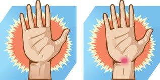 Dolore della mano illustrazione di stock
