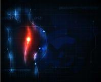 Dolore della spina dorsale Immagini Stock