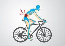 Dolore della spina dorsale del motociclista Immagine Stock
