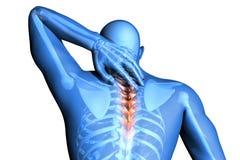 Dolore della spina dorsale - trauma delle vertebre Fotografie Stock