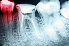 Dolore di carie dentaria sui raggi x immagine stock