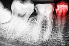 Dolore di carie dentaria sui raggi x fotografia stock
