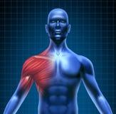 Dolore di muscolo della spalla Fotografie Stock
