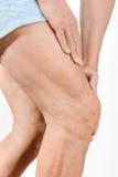 Dolore di sensibilità dell'uomo dell'atleta al ginocchio ed al quadricipite Immagini Stock Libere da Diritti